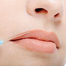 Relleno, aumento y corrección de labios