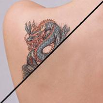 Eliminación de tatuajes, micropigmentación y microblading
